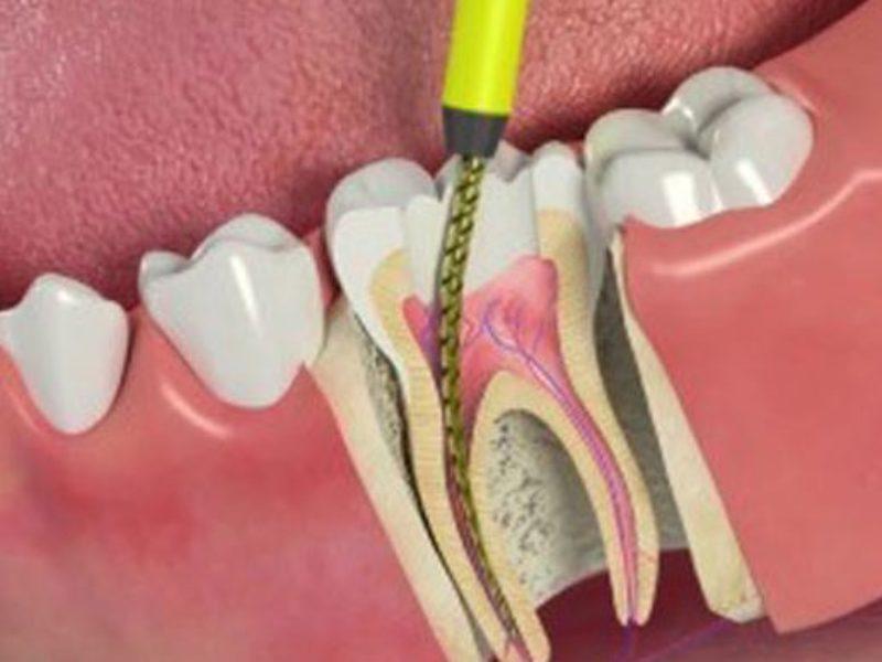 Лечение зубов в Киеве: терапевтическое лечение без боли   МК Сырец