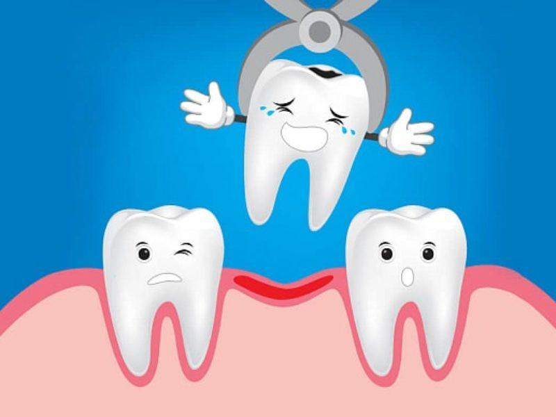 Удаление зубов по доступным ценам в Харькове